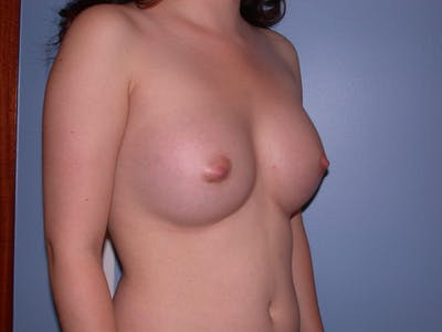 Breast Augmentation Gallery - Patient 4757521 - Image 8