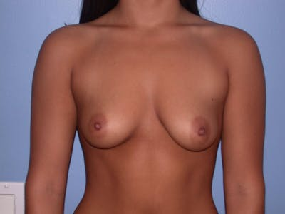 Breast Augmentation Gallery - Patient 4757525 - Image 26