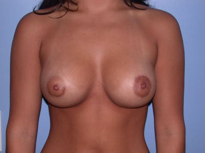 Breast Augmentation Gallery - Patient 4757525 - Image 2