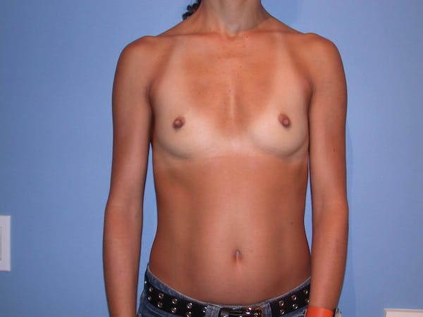 Breast Augmentation Gallery - Patient 4757531 - Image 1