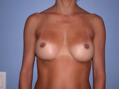 Breast Augmentation Gallery - Patient 4757531 - Image 2