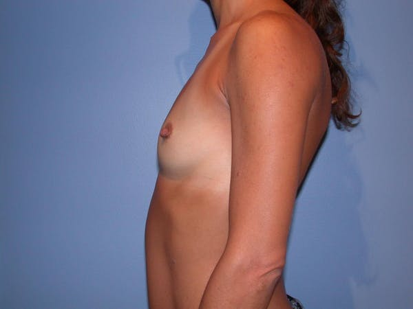 Breast Augmentation Gallery - Patient 4757531 - Image 3