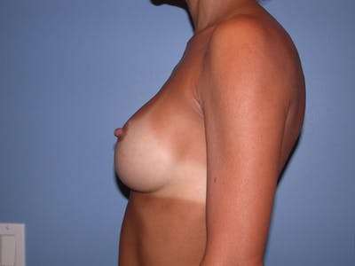 Breast Augmentation Gallery - Patient 4757531 - Image 4