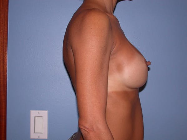 Breast Augmentation Gallery - Patient 4757531 - Image 6