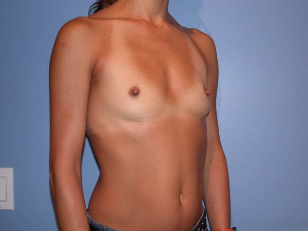 Breast Augmentation Gallery - Patient 4757531 - Image 7
