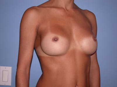 Breast Augmentation Gallery - Patient 4757531 - Image 8
