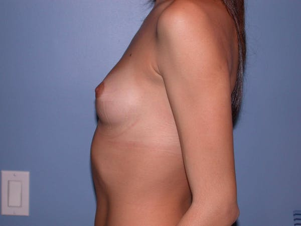 Breast Augmentation Gallery - Patient 4757539 - Image 5