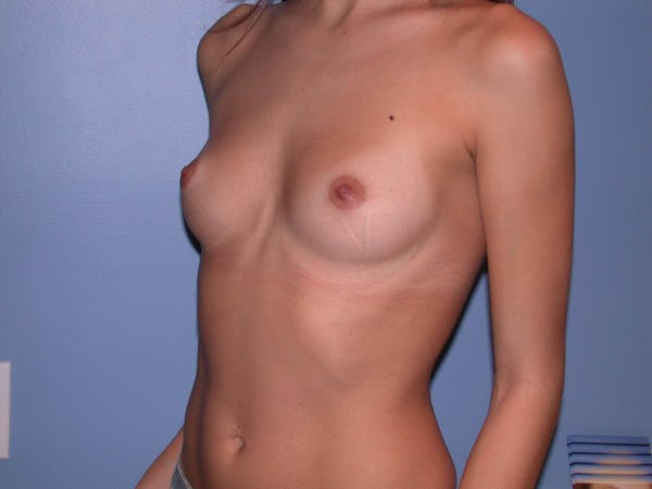 Breast Augmentation Gallery - Patient 4757539 - Image 7