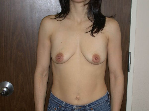 Breast Augmentation Gallery - Patient 4757541 - Image 1