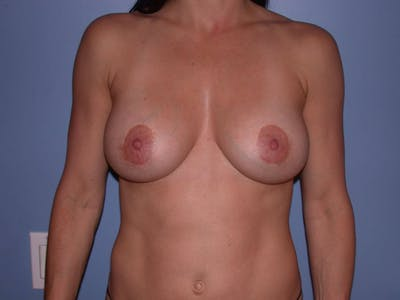 Breast Augmentation Gallery - Patient 4757541 - Image 2