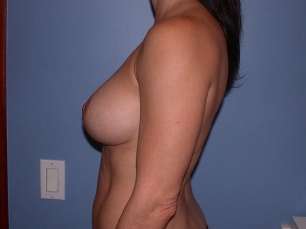 Breast Augmentation Gallery - Patient 4757541 - Image 4