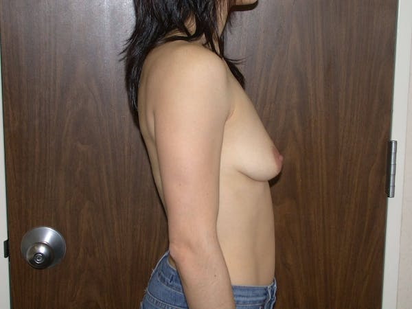 Breast Augmentation Gallery - Patient 4757541 - Image 5