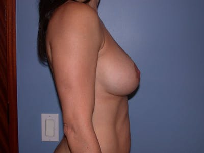 Breast Augmentation Gallery - Patient 4757541 - Image 6