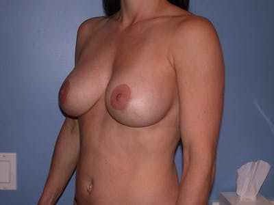 Breast Augmentation Gallery - Patient 4757541 - Image 8