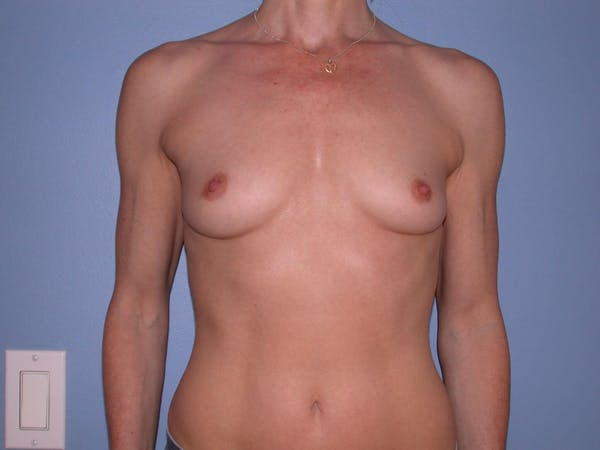 Breast Augmentation Gallery - Patient 4757544 - Image 1