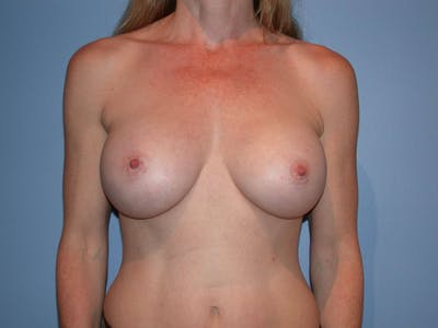 Breast Augmentation Gallery - Patient 4757544 - Image 2