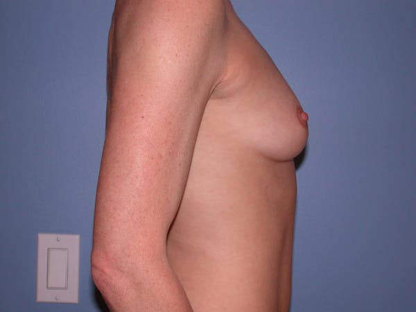 Breast Augmentation Gallery - Patient 4757544 - Image 3