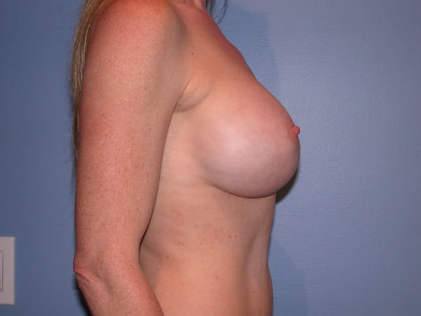 Breast Augmentation Gallery - Patient 4757544 - Image 4