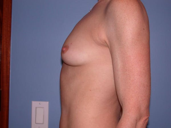 Breast Augmentation Gallery - Patient 4757544 - Image 5
