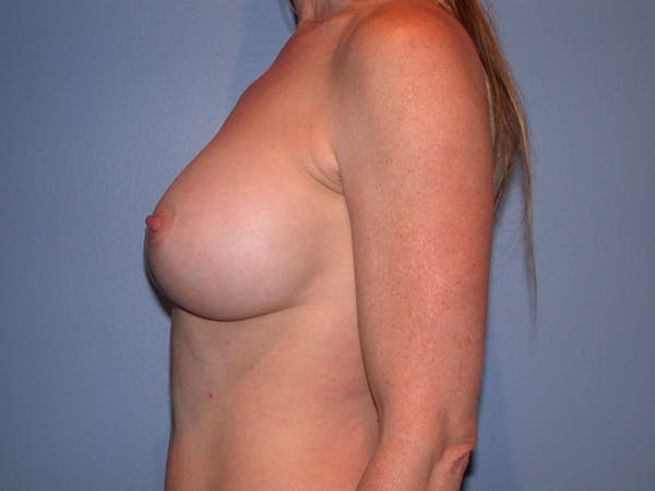 Breast Augmentation Gallery - Patient 4757544 - Image 6