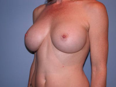 Breast Augmentation Gallery - Patient 4757544 - Image 8