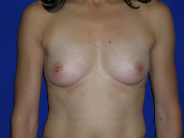 Breast Augmentation Gallery - Patient 4757551 - Image 1