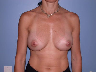 Breast Augmentation Gallery - Patient 4757551 - Image 2