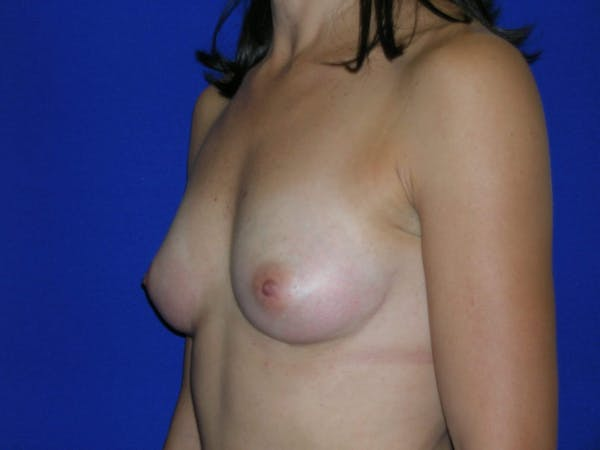 Breast Augmentation Gallery - Patient 4757551 - Image 3