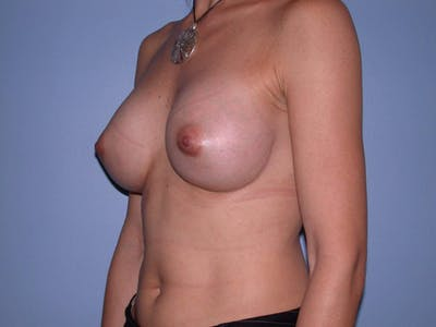 Breast Augmentation Gallery - Patient 4757551 - Image 4