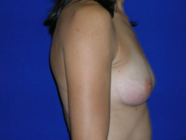 Breast Augmentation Gallery - Patient 4757551 - Image 5