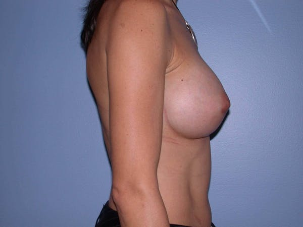Breast Augmentation Gallery - Patient 4757551 - Image 6