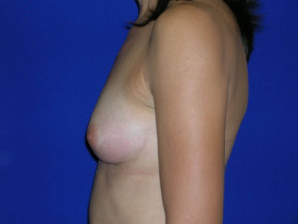 Breast Augmentation Gallery - Patient 4757551 - Image 7