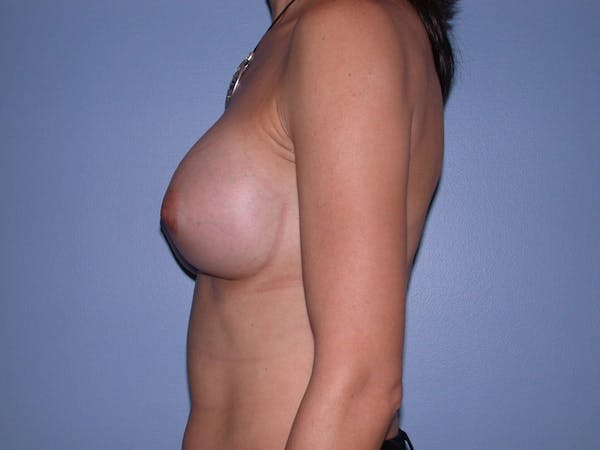 Breast Augmentation Gallery - Patient 4757551 - Image 8