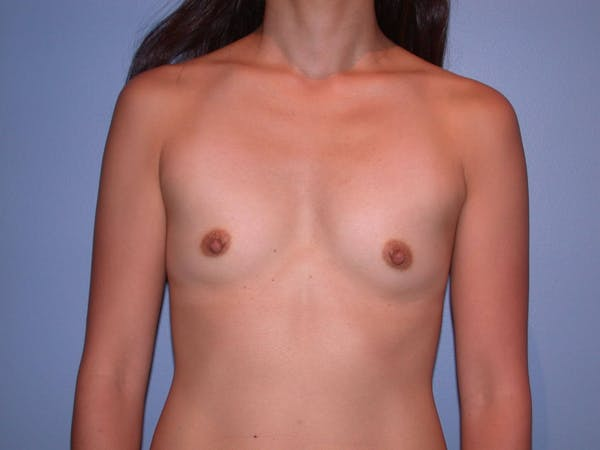 Breast Augmentation Gallery - Patient 4757553 - Image 1