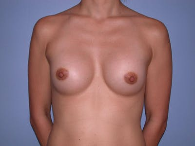 Breast Augmentation Gallery - Patient 4757553 - Image 2
