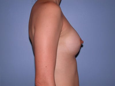 Breast Augmentation Gallery - Patient 4757553 - Image 4