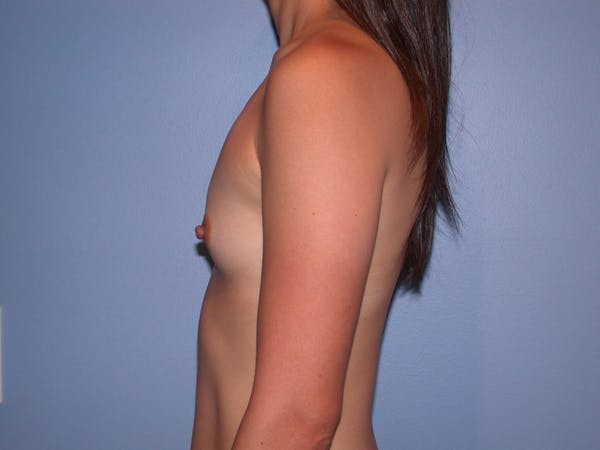 Breast Augmentation Gallery - Patient 4757553 - Image 5