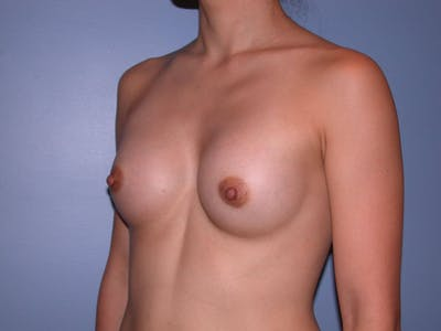Breast Augmentation Gallery - Patient 4757553 - Image 8