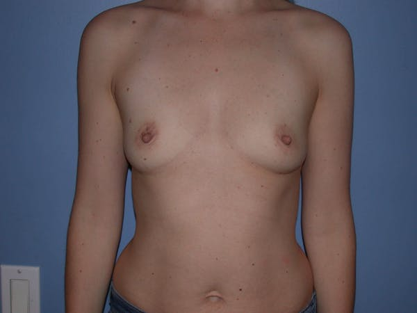 Breast Augmentation Gallery - Patient 4757562 - Image 1