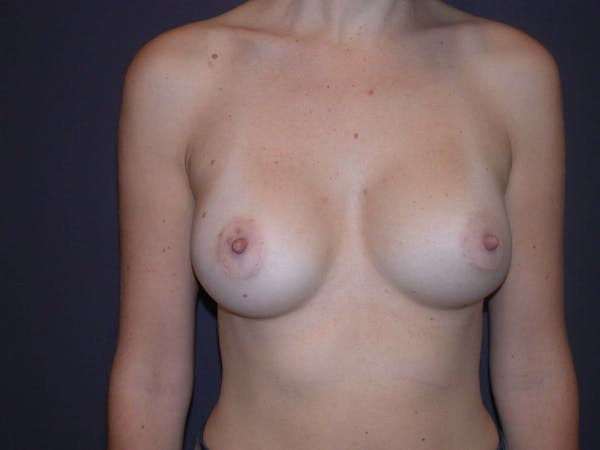 Breast Augmentation Gallery - Patient 4757562 - Image 2