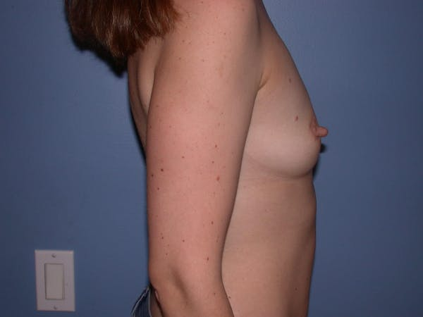 Breast Augmentation Gallery - Patient 4757562 - Image 3