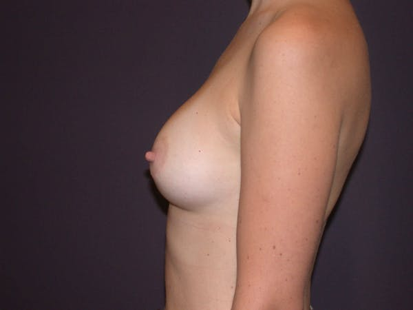 Breast Augmentation Gallery - Patient 4757562 - Image 6