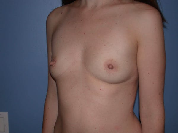 Breast Augmentation Gallery - Patient 4757562 - Image 7