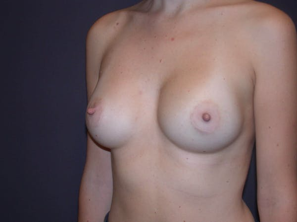 Breast Augmentation Gallery - Patient 4757562 - Image 8
