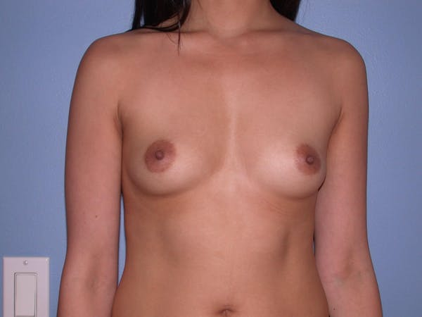 Breast Augmentation Gallery - Patient 4757564 - Image 1