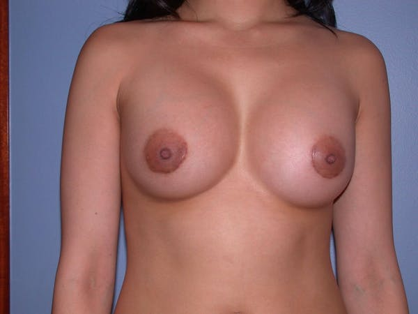 Breast Augmentation Gallery - Patient 4757564 - Image 2