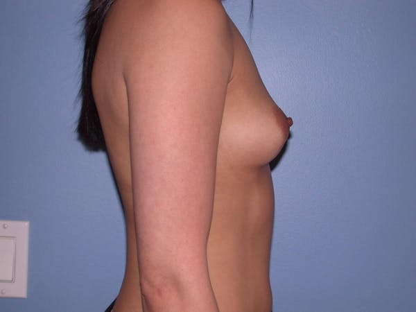 Breast Augmentation Gallery - Patient 4757564 - Image 3