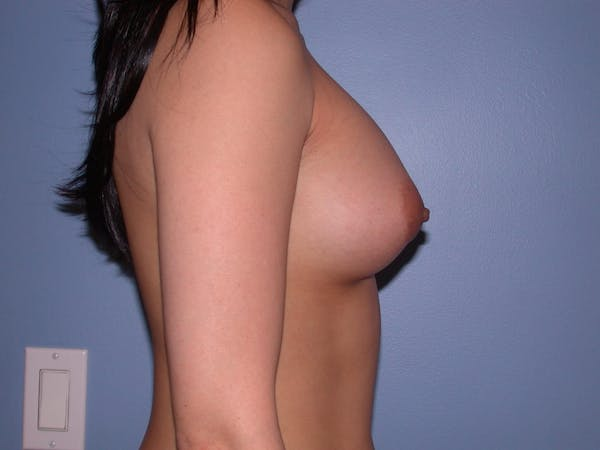 Breast Augmentation Gallery - Patient 4757564 - Image 4