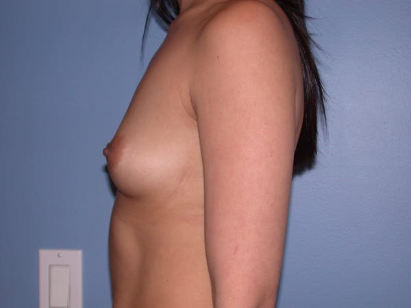 Breast Augmentation Gallery - Patient 4757564 - Image 5