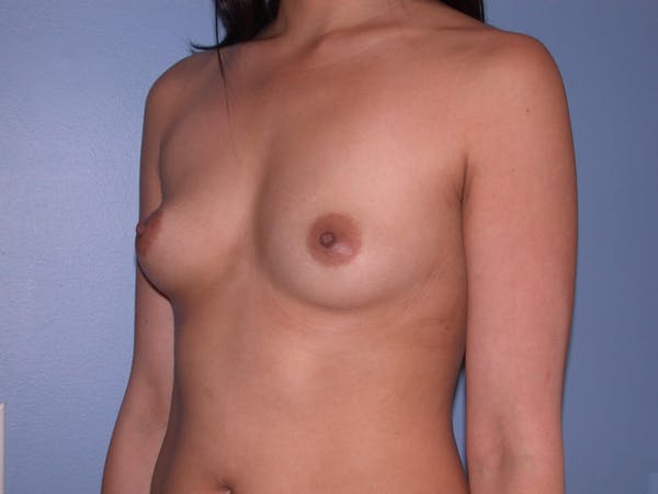 Breast Augmentation Gallery - Patient 4757564 - Image 7